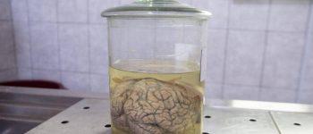 محققان مغز خوک را در خارج از بدن زنده نگاه داشتند